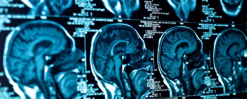 MCAT Practice Questions: Psychology